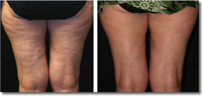 The Effective Treatment Of Cellulite November 2011