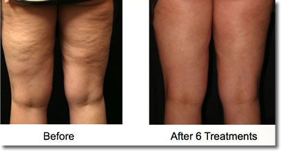 The Effective Treatment of Cellulite (November 2011) Townsend Letter